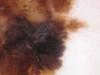 Меланома и пигментные невусы. №1033
