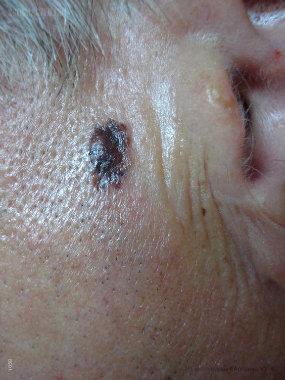 Меланома на щеке