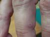 Тромбидиаз. Клинические фото #1119