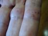 Тромбидиаз. Клинические фото #1121