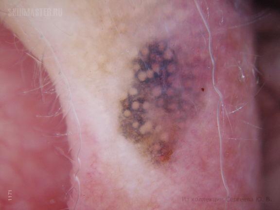 Базалиома и лентиго-малигна (меланома)