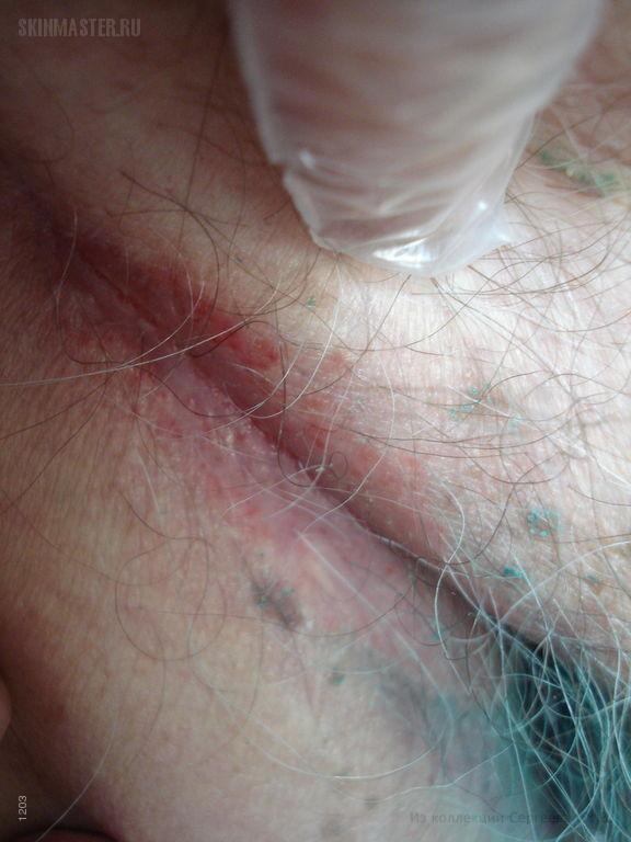 Кандидоз поверхностный: баланопостит и поражение паховых складок