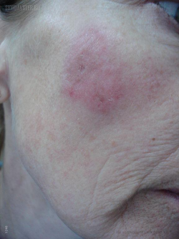 Доброкачественная лимфоплазия кожи