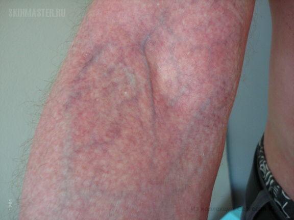 Атопический дерматит: стероидная пойкилодермия