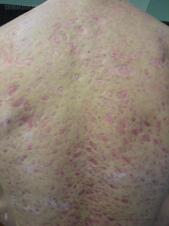 Постэруптивная рубцовая атрофия