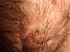 Дерматозы беременных: черная линия (linea nigra) и меланоцитарные невусы. №1312