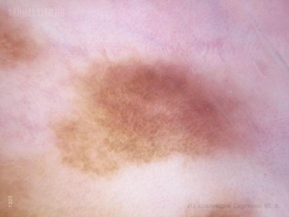 Очаговый меланоз половых органов