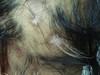 Почесуха узловатая. Клинические фото #1336