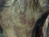 Почесуха узловатая. Клинические фото #1337