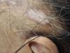 Почесуха узловатая. Клинические фото #1338