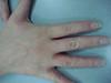 Экзема микробная (монетовидная) и гепатит В. №1362