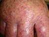 Экзематоид геморрагический. Клинические фото #1427