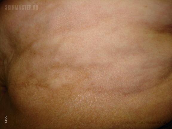 Диссеминированная склеродермия, синдром Тибьержа-Вейссенбаха и диабетическая язва