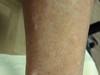 Диссеминированная склеродермия, синдром Тибьержа-Вейссенбаха и диабетическая язва. №1457