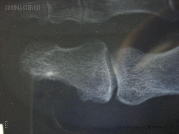 Костная мозоль