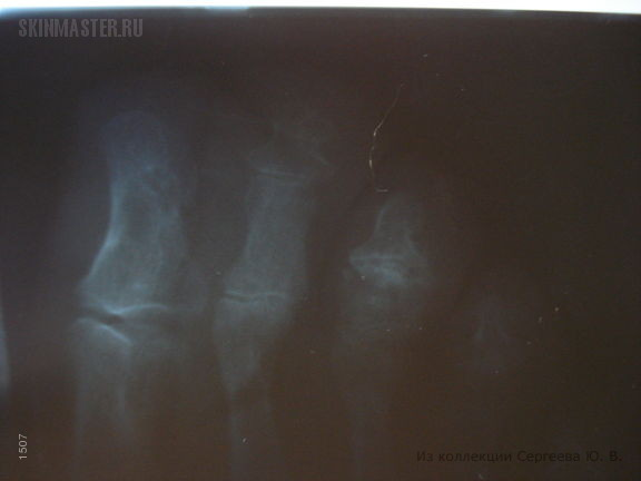 Онихомикоз и киста в области матрикса ногтя