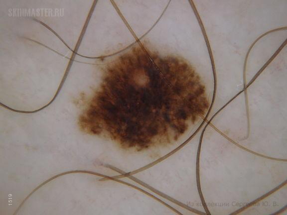 Поверхностно-распространяющаяся меланома, саморегрессирующая форма