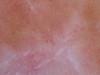 Беспигментная форма меланомы и внутридермальные невусы. №1532