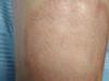 Некробиоз липоидный. Клинические фото #1546
