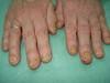Болезнь Аддисона и дерматофития, как осложнение перманентной кортикостероидной терапии. №1581
