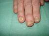 Болезнь Аддисона и дерматофития, как осложнение перманентной кортикостероидной терапии. №1582