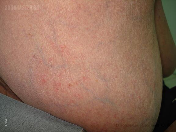 Болезнь Аддисона и дерматофития, как осложнение перманентной кортикостероидной терапии
