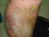 Псориаз. Клинические фото #1592