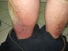 Псориаз. Клинические фото #1593