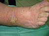 Псориаз. Клинические фото #1594