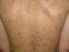Пурпура тромбоцитопатическая. Клинические фото #1598