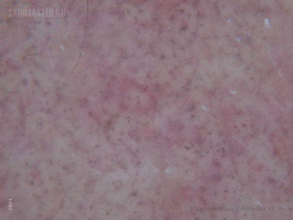 Гепатит С и хроническая тромбоцитопатическая пигментная пурпура