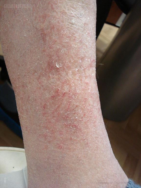 Астеатотическая экзема, eczema craquele