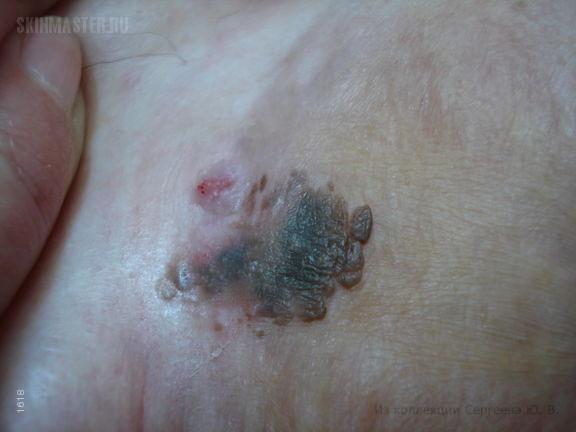 Меланоакантома: вариант себорейного кератоза