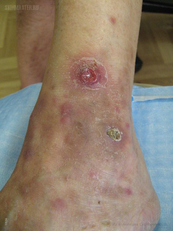 Лимфоматоидный папулез