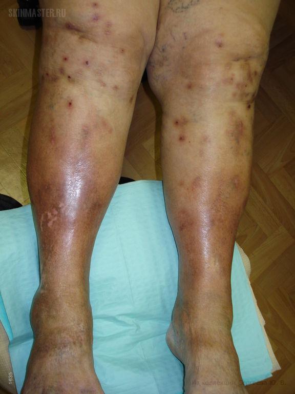 Узловатая почесуха Гайда и застойный дерматит
