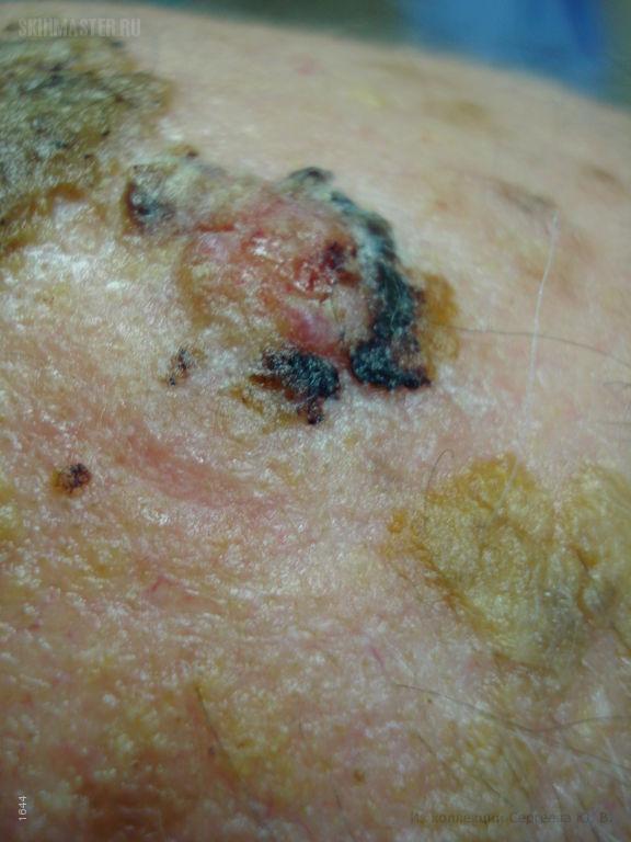Базалиома и себорейный кератоз