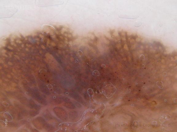 Поверхностно-распространяющаяся форма меланомы
