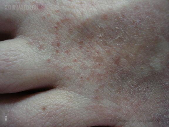 Идиопатический гиперэозинофильный синдром: гиперэозинофильный дерматит.