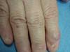 Гигантоклеточная опухоль влагалища сухожилий, анонихия и птеригиум. №1708