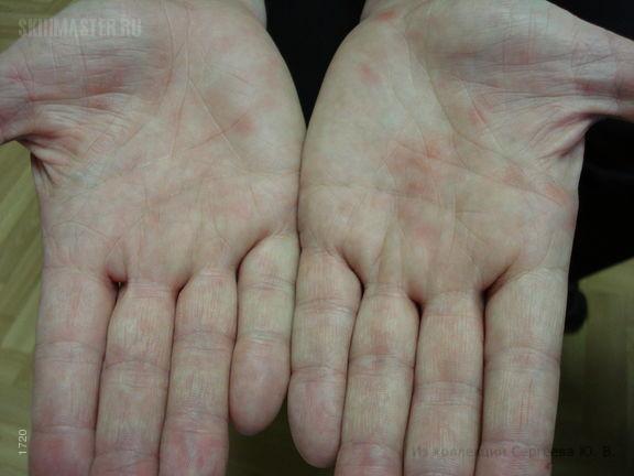Иерсиниоз: кожные проявления