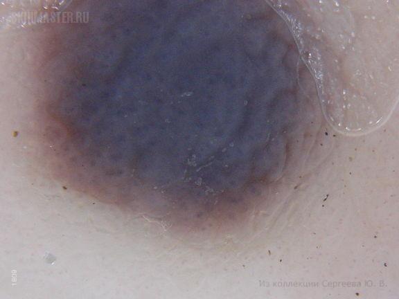 Ангиофиброматозные пролиферации: диссеминированные ангиофибромы