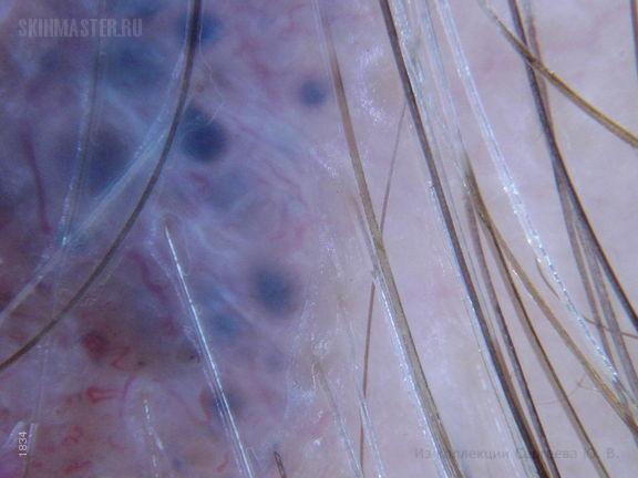 Базалиома, пигментная форма