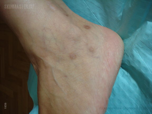 Ятрогенная рубцово-пигментная атрофия кожи
