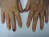Синдром зеленых ногтей. №1862