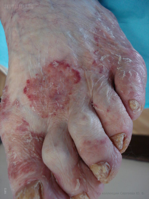 Пурпурозно-фестончатая форма дерматофитии стоп