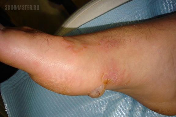 Болезнь пляжного отпуска: Larva migrans