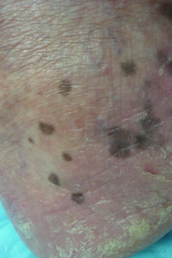 Ладонно-подошвенный лентигиноз у больного псориазом