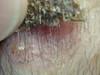 Кератома себорейная. Клинические фото #1974