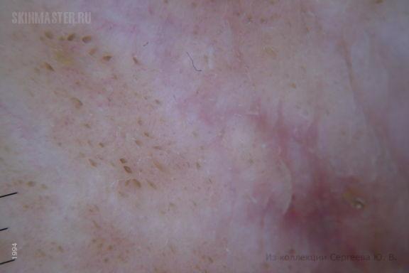 Гидраденит и черный акантоз у больного гепатитом С
