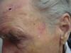 Карцинома плоскоклеточная. Клинические фото #2022